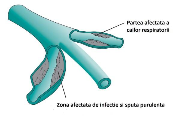 Ce simptome are bronsiectazia si cum se manifesta aceasta boala grava a plamanilor?
