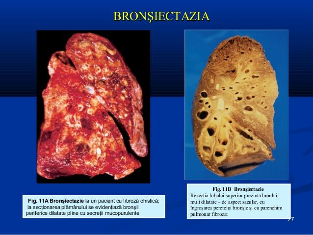 Tratamente naturiste pentru bronsiectazie